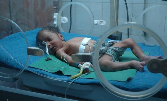 inkubator bayi prematur